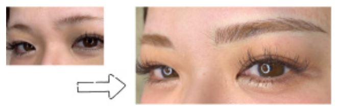 クリスティーナクリニック銀座の眉アート症例写真