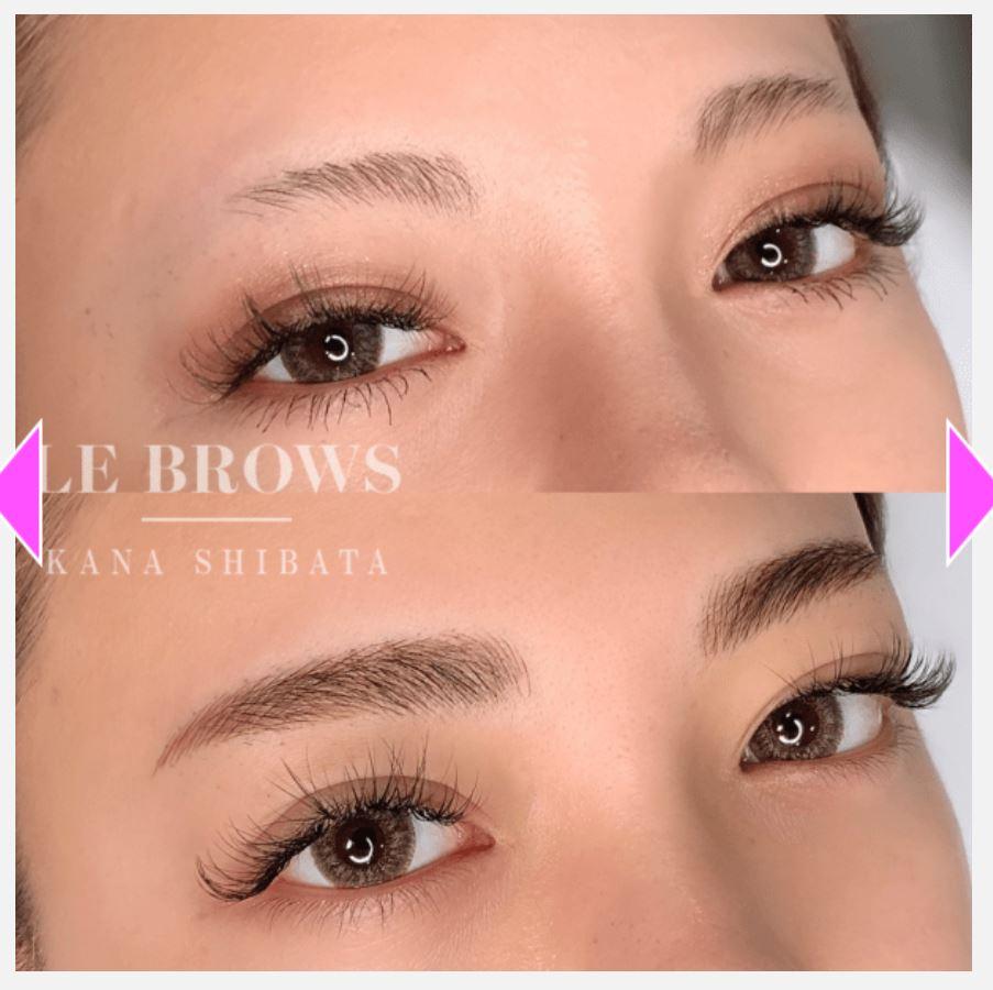 エレナクリニックの眉毛のアートメイク症例