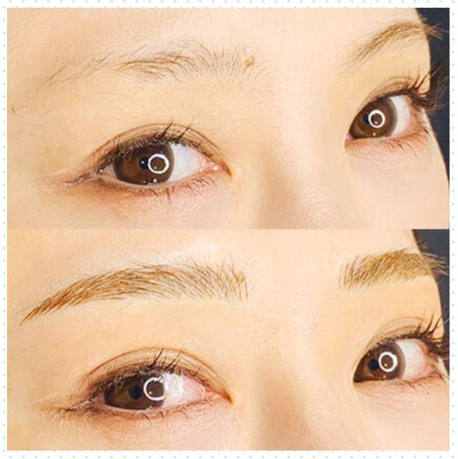 レディアス美容クリニック恵比寿の眉アート症例写真