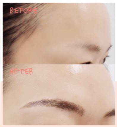ウィクリニックの眉毛アート症例写真