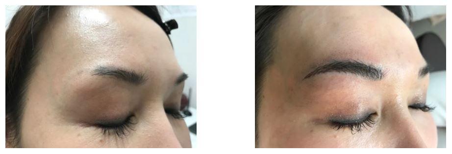 銀座よしえクリニックの眉毛アートメイク症例写真