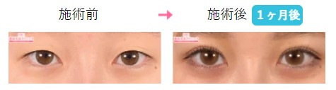 湘南美容クリニック 横浜院の二重症例写真