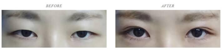 TCB東京中央美容外科の二重症例写真