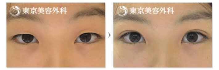 東京美容外科の二重症例写真