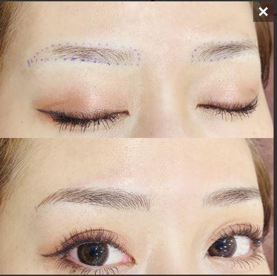 メディカルブロー福岡天神院の眉毛アートメイク症例写真
