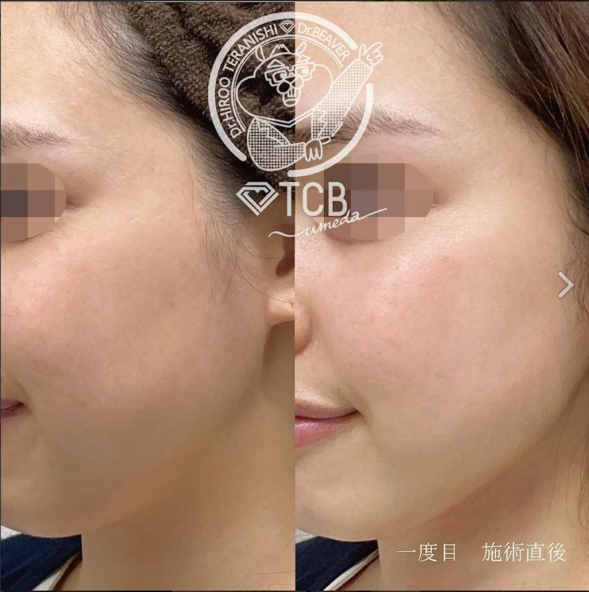 TCB東京中央美容外科のハイフ症例写真1