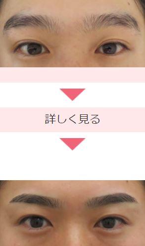 クレアージュ東京の眉アートメイク症例写真1