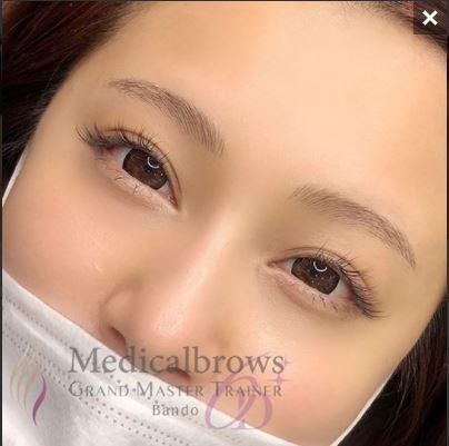 メディカルブローの眉アートメイク症例写真2