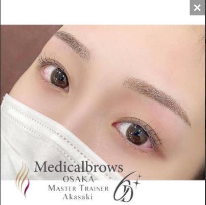 メディカルブローの眉アートメイク症例写真3