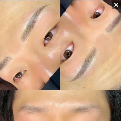 メディカルブローの眉アートメイク症例写真5