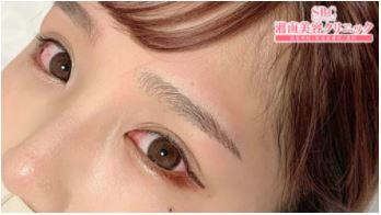 湘南美容クリニックの眉アートメイク症例写真2
