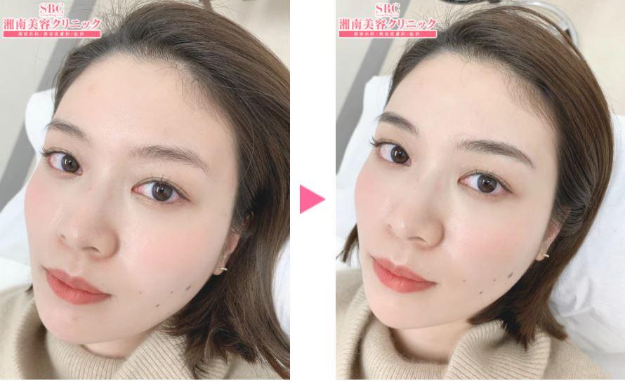 湘南美容クリニックの眉アートメイク症例写真3