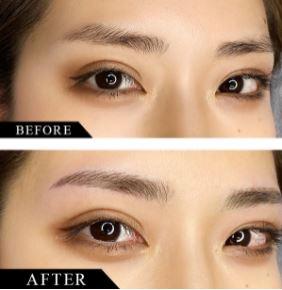AISクリニックの眉アートメイク症例写真1