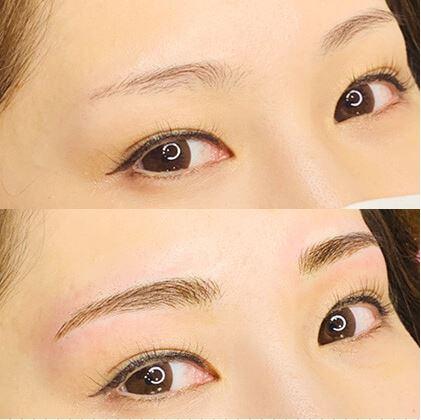 レディアス美容クリニック恵比寿の眉アートメイク症例写真1