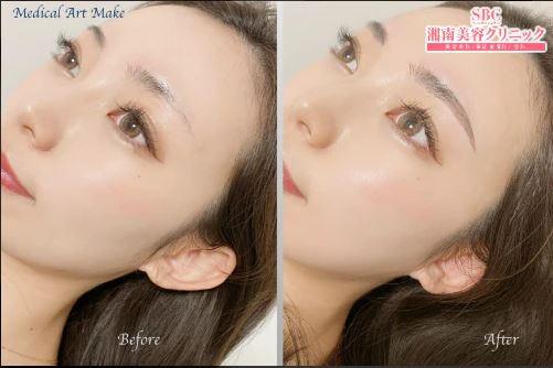 湘南美容クリニック(湘南AGAクリニック)の眉アートメイク症例写真1