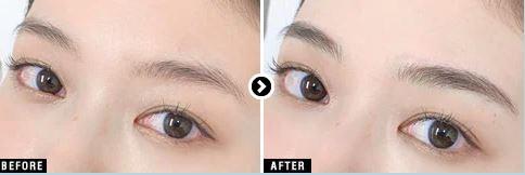 湘南美容クリニック(湘南AGAクリニック)の眉アートメイク症例写真2