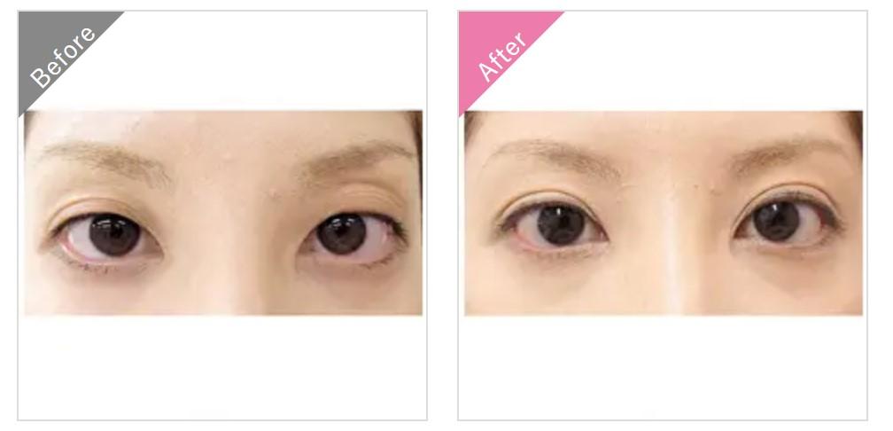 渋谷美容外科クリニックの埋没法二重整形の症例1