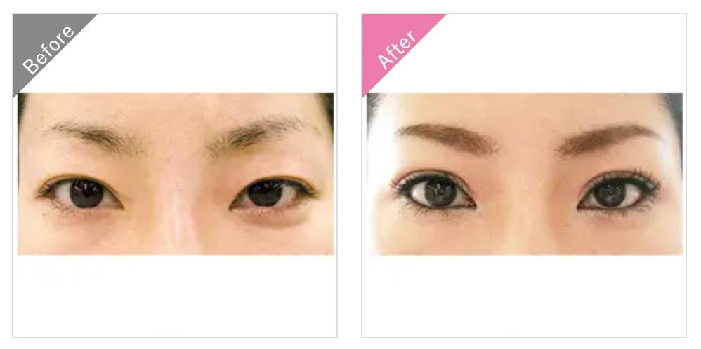 渋谷美容外科クリニックの埋没法二重整形の症例2