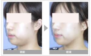 湘南美容クリニックのハイフ症例写真