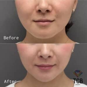 東京中央美容外科のハイフ症例写真